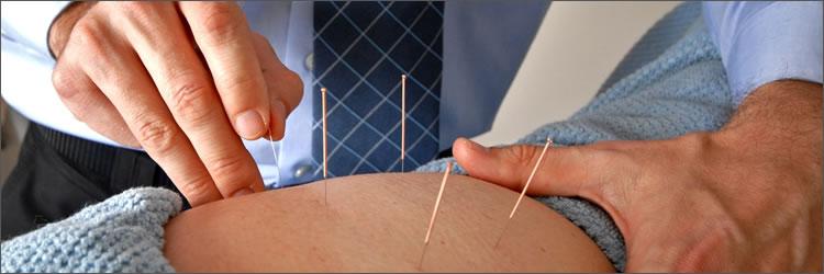 esp-acupuntura